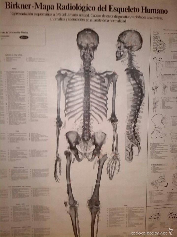 mapa radiologico de esqueleto humano - Comprar Herramientas ...