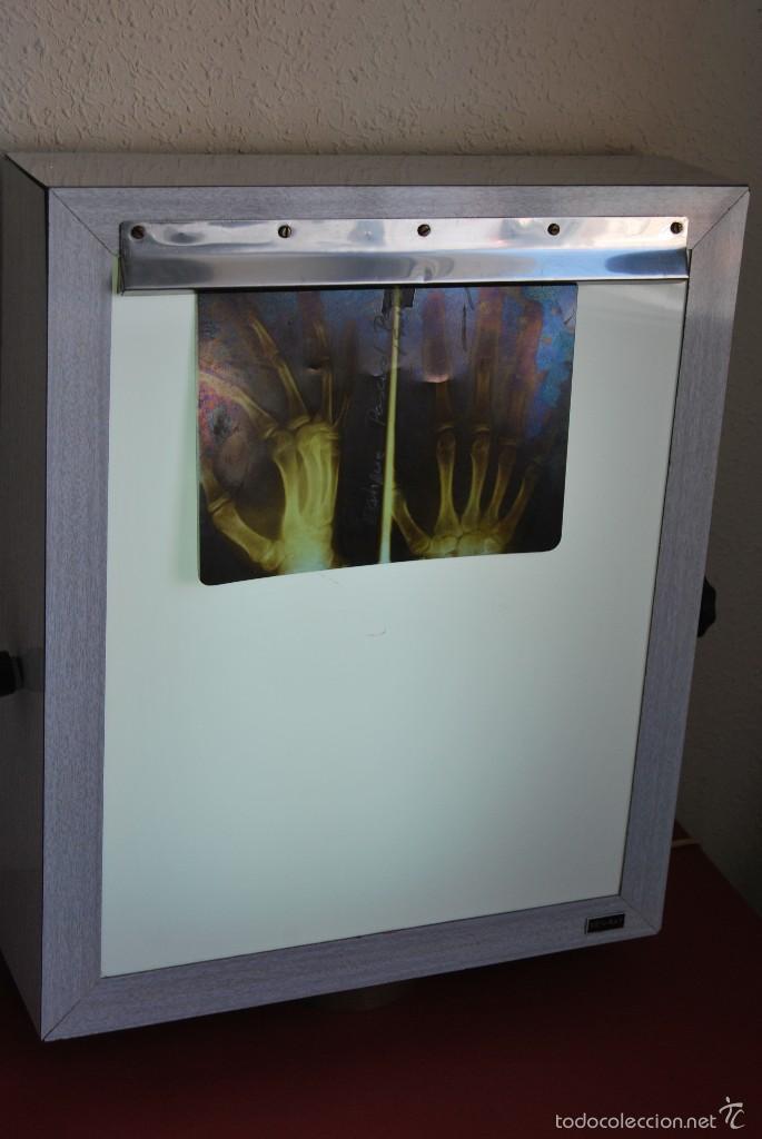 radiografías en Vendido negatoscopi men Lámpara de ray edBrCxo