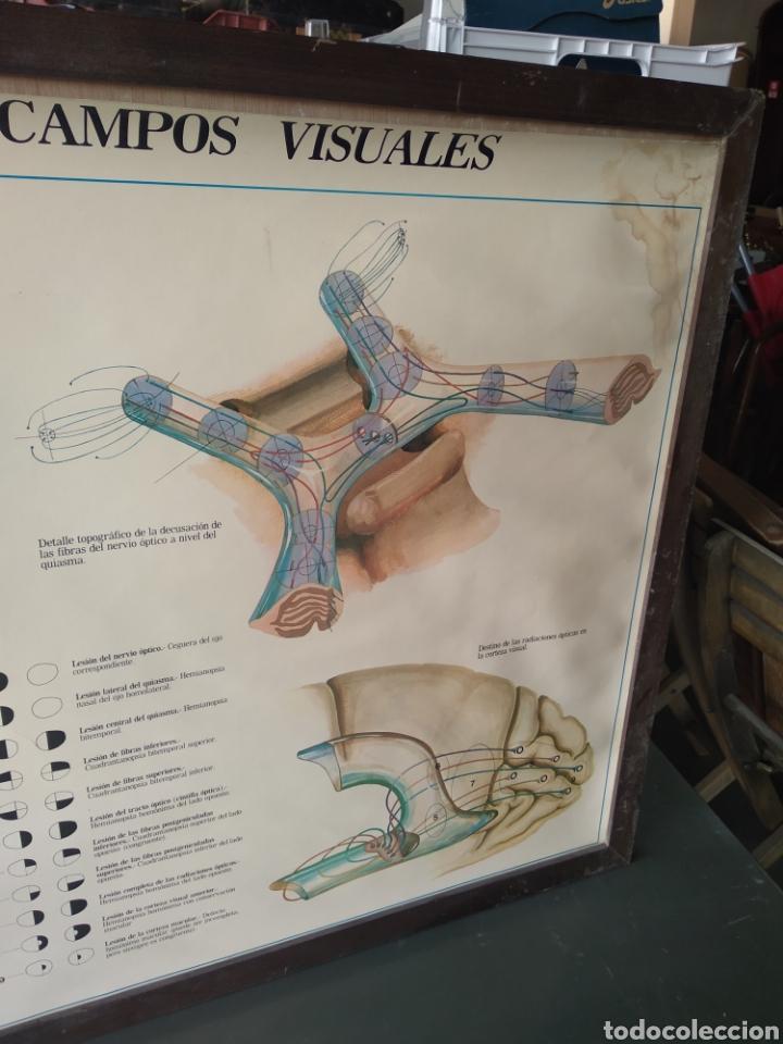Antigüedades: Cuadro vias opticas y campos visuales - Foto 4 - 170496016