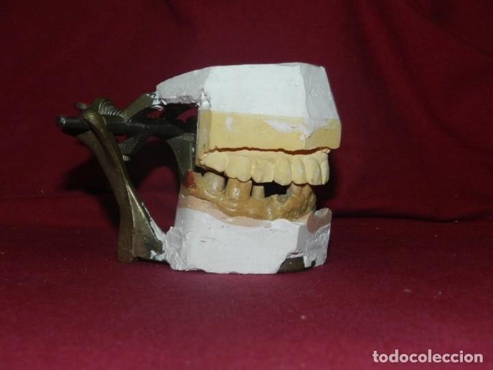 Antigüedades: (M) Dentista - Anatomia Gabinete Médico de la Boca, Antiguo, 9x13x11,5 cm, Señales de Uso - Foto 2 - 175482495