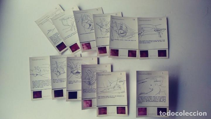 3D FICHAS OPERACION ESOFAGO DIGIUNO GASTROPLASTICA (Antigüedades - Técnicas - Herramientas Profesionales - Medicina)