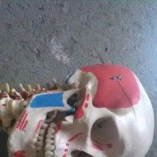 Antigüedades: ANATOMÍA HUMANA, CADÁVER, HUESITOS. Lote 209311775