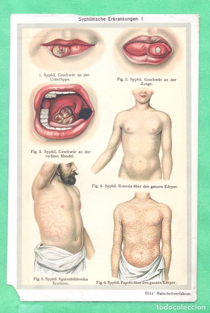 MEDICINA NATUROPAT SÍFILIS (SYPHILITISCHE ERKRANKUNGEN) CROMOLITOGRAFÍA BILZ NATURHEILVERFAREN 1890 (Arte - Cromolitografía)