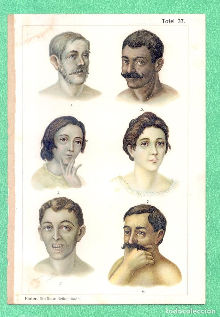 MEDICINA NATUROPATÍA ENVENENAMIENTO CON MERCURIO CROMOLITOGRAFÍA BILZ NATURHEILVERFAREN 1890 (Arte - Cromolitografía)