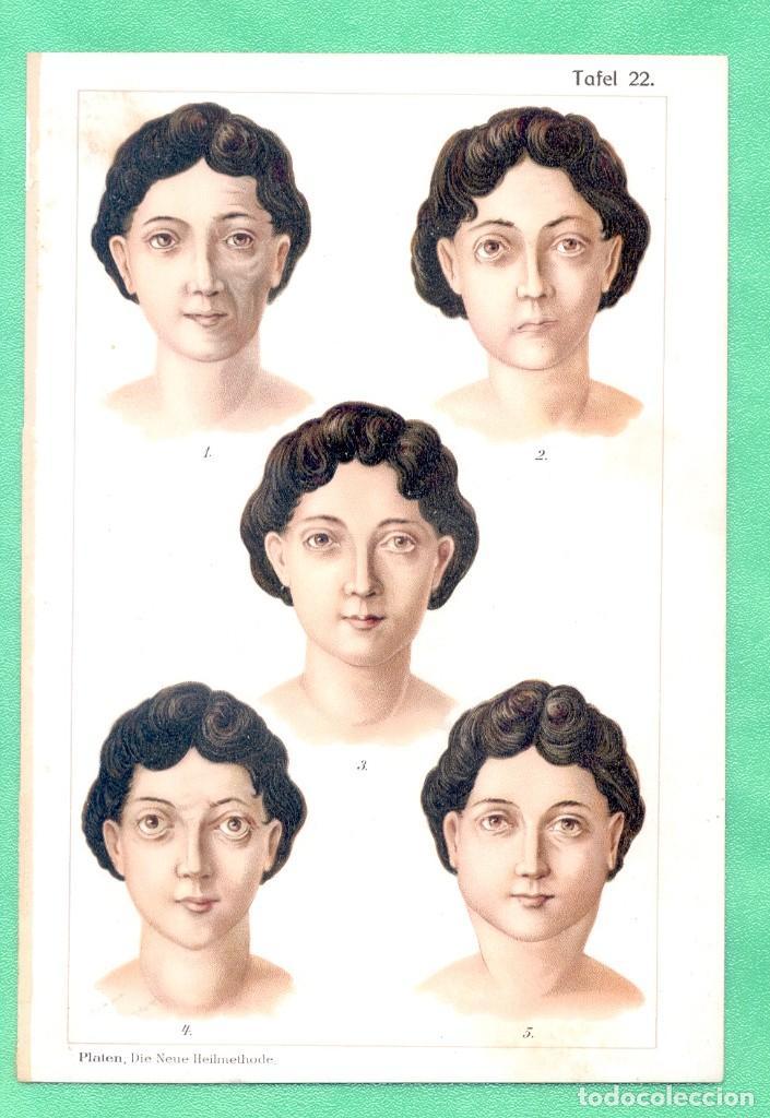 MEDICINA NATUROPATÍA EFECTOS DE LA PAROTIDITIS CROMOLITOGRAFÍA BILZ NATURHEILVERFAREN 1890 (Arte - Cromolitografía)