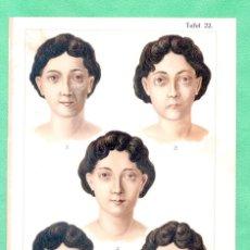 Arte: MEDICINA NATUROPATÍA EFECTOS DE LA PAROTIDITIS CROMOLITOGRAFÍA BILZ NATURHEILVERFAREN 1890. Lote 256012385