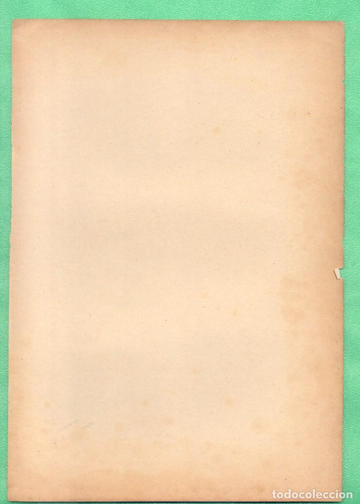 Arte: MEDICINA ANATOMÍA ENFERMEDADES DE LOS OJOS ( MALADIES DE LOEIL) CROMOLITOGRAFÍA 1900 - Foto 2 - 256019330