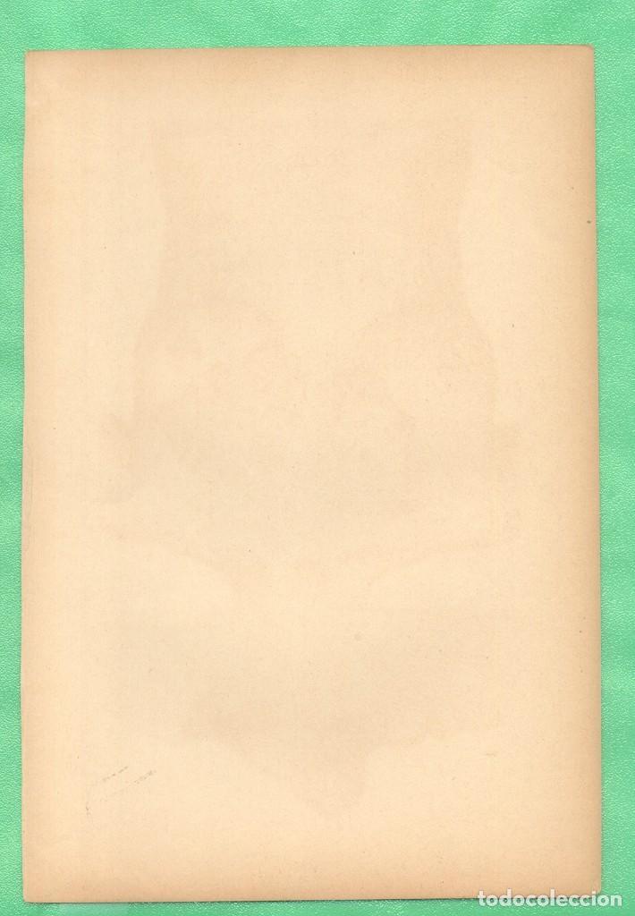 Arte: MEDICINA ANATOMÍA LUPUS DE NARIZ Y PECHO CROMOLITOGRAFÍA 1900 - Foto 2 - 256023335
