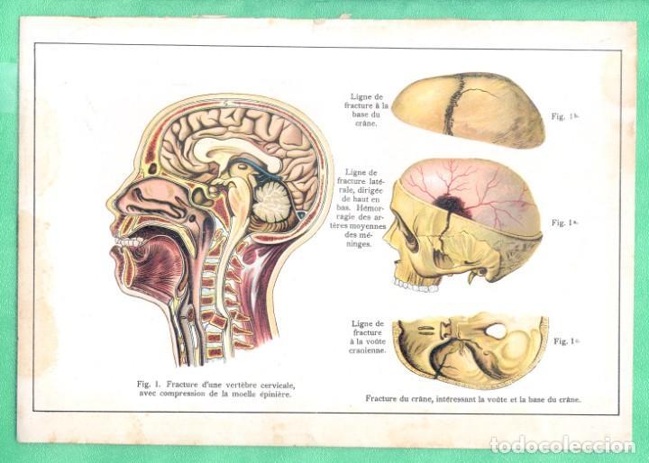 MEDICINA ANATOMÍA FRACTURA DE CERVICAL Y DE CRÁNEO CROMOLITOGRAFÍA 1900 (Arte - Cromolitografía)