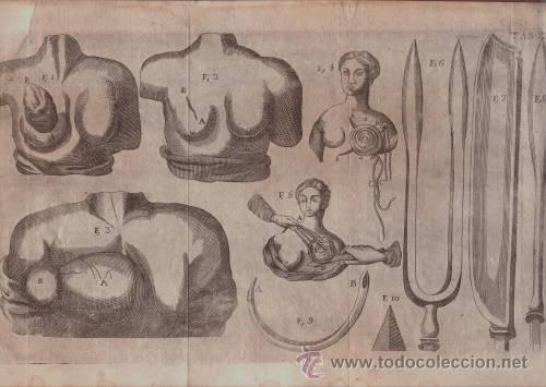 MEDICINA: GRABADO. (Arte - Grabados - Antiguos hasta el siglo XVIII)
