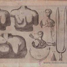 Arte: MEDICINA: GRABADO.. Lote 38835631