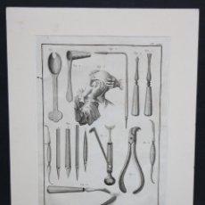"""Arte: ANTONIO BARATTI. GRABADO EN PLANCHA DE ACERO DEL SIGLO XVIII DE LA OBRA """"CHIRURGIE"""". Lote 46886288"""