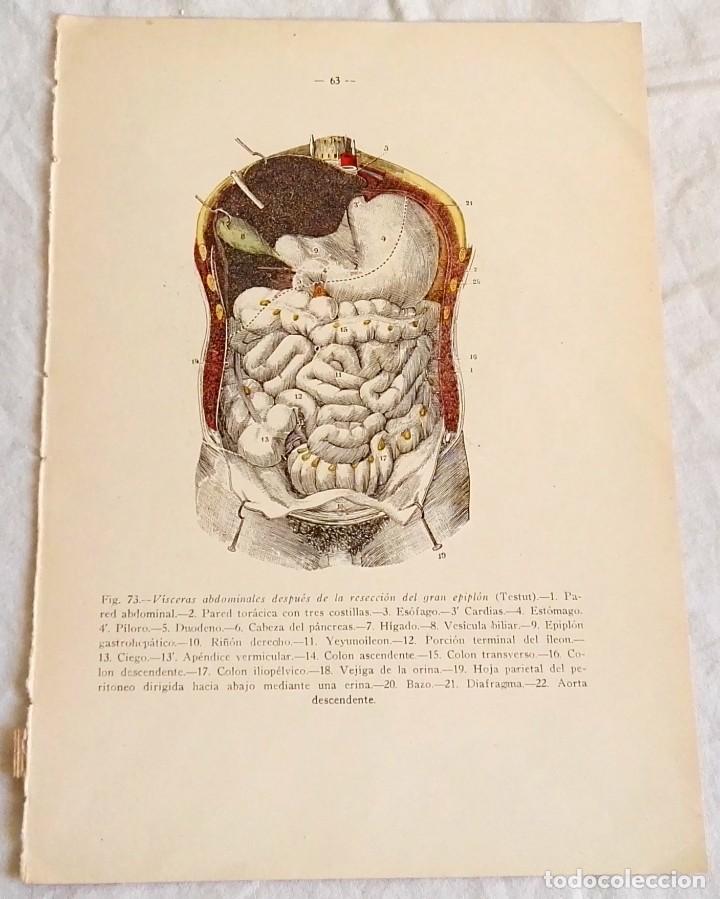 antiguo grabado medicina - cuerpo humano - vísc - Comprar Grabados ...