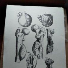 Arte: EL GRABADO EN LA HISTORIA DE LA MEDICINA - LAMINA II - AÑO 1721, GENEVAE,CRAMER,PERACHON. Lote 240490045