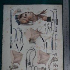 Arte: LITOGRAFIA. ATLAS DE ANATOMIA HUMANA DE BOURGERY Y JACOB - PARIS. 1831- 1854. TRAQUEOTOMIA.. Lote 44821211