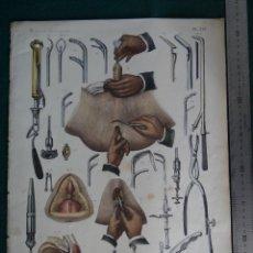 Arte: LITOGRAFIA - DEL ATLAS DE ANATOMIA HUMANA DE BOURGERY Y JACOB - PARIS - 1831 - 1854 -. Lote 44821605