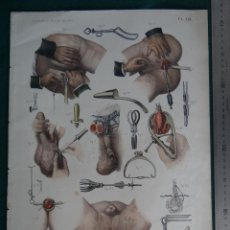 Arte: LITOGRAFIA - DEL ATLAS DE ANATOMIA HUMANA DE BOURGERY Y JACOB - PARIS - 1831 - 1854 -. Lote 44822271