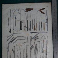 Arte: LITOGRAFIA - DEL ATLAS DE ANATOMIA HUMANA DE BOURGERY Y JACOB - PARIS - 1831 - 1854 - CIRUGIA -. Lote 44822790