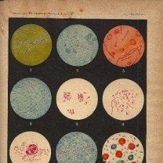 Colecionismo: *BACTERIAS * ESTREPTOCOCOS, ESTAFILOCOCOS, ESPLENITIS, TIFUS, DIFTERIA... - CIRCA 1900. Lote 21519384