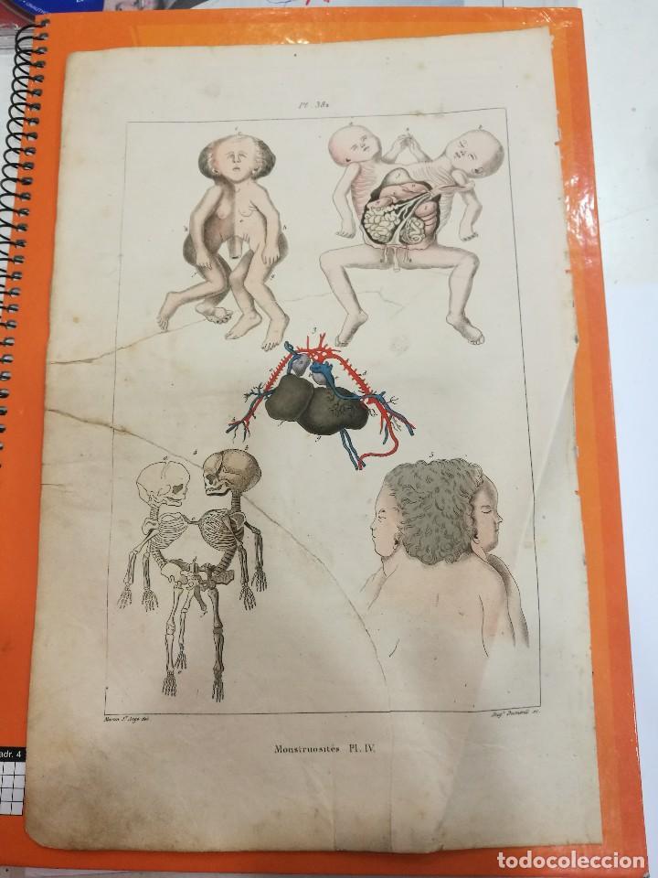 LAMINA MONSTRUOSIDADES SIGLO XIX (Coleccionismo - Laminas, Programas y Otros Documentos)
