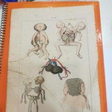 Coleccionismo: LAMINA MONSTRUOSIDADES SIGLO XIX. Lote 109105067