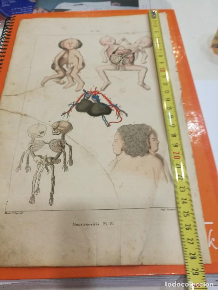 Coleccionismo: Lamina monstruosidades siglo XIX - Foto 2 - 109105067