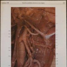 Coleccionismo: LAMINA N°128 DIPTICO ARTERIA CARÓTIDA EXTERNA. Lote 159691700