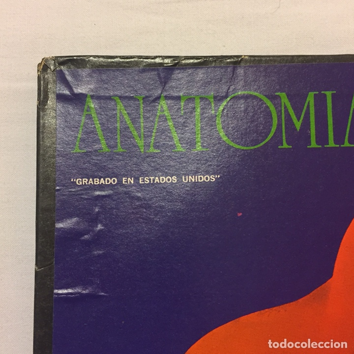 Fantástico Anatomía De Un Disco De Vinilo Patrón - Anatomía de Las ...