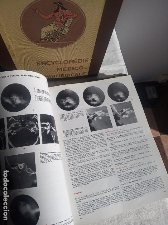 Enciclopedias antiguas: Encyclopédie médico chirurgicale Oto-rhino laryngologie.3 tomos. LAFFONT, A. P. Comité Scientifique. - Foto 8 - 197843958