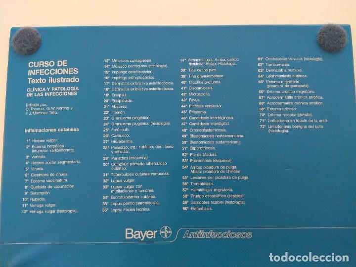 Fotografía antigua: Diapositivas CURSO DE INFECCIONES, medicina. - Foto 4 - 132020882