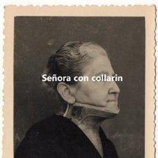 Fotografía antigua: ORTOPEDIA. SEÑORA CON COLLARÍN. MEDICINA.. Lote 132129102