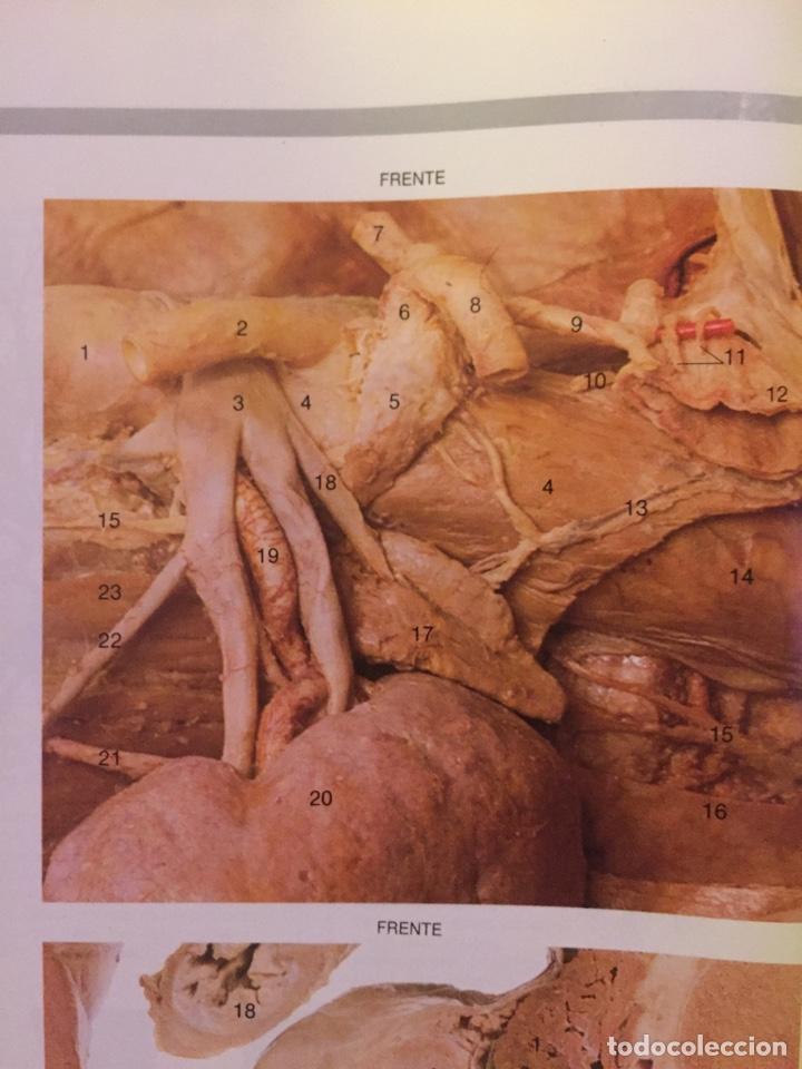 Libros: Gran Atlas de Anatomía Humana 1 y 2 NUEVA EDICIÒN - Foto 4 - 184399305