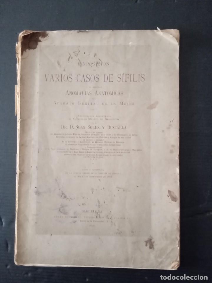 VARIOS CASOS DE SÍFILIS -DR.JUAN SOLER Y BUSCALLA. (Libros Nuevos - Ciencias, Manuales y Oficios - Anatomía )