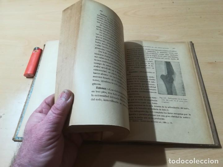 Libros antiguos: ENCICLOPEDIA VETERINARIA C CADEAC / PATOLOGIA QUIRURGICA ARTICULACIONES T DUODECIMO / ED FELIPE GONZ - Foto 9 - 225050865