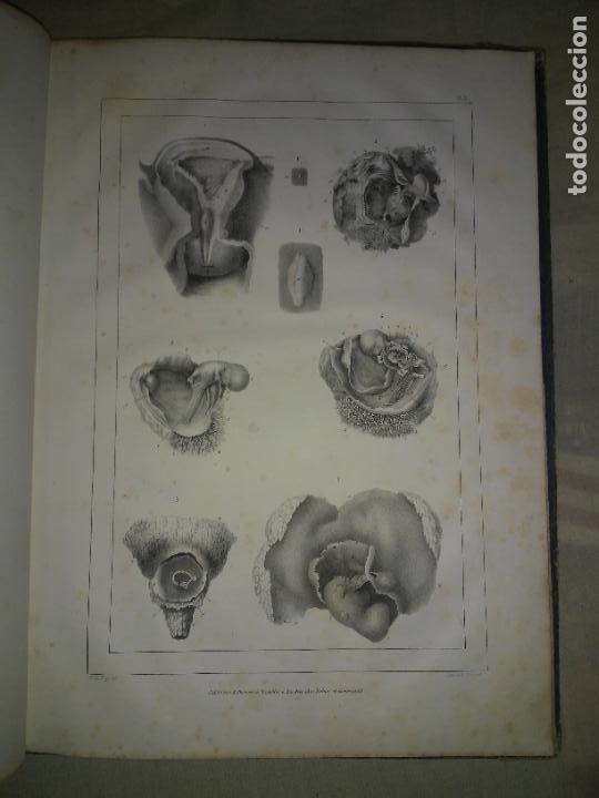 Libros antiguos: EMBRIOLOGIA O OVOLOGIA HUMANA - AÑO 1834 - VELPEAU - BELLAS PLANCHAS EN FOLIO. - Foto 5 - 229213030