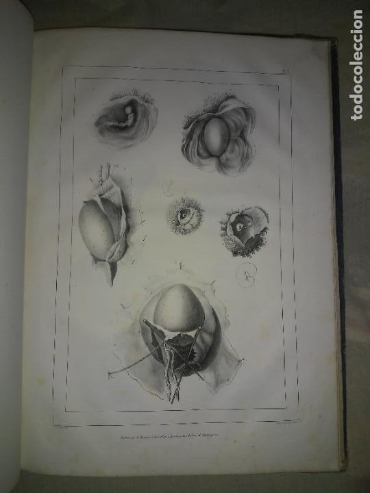 Libros antiguos: EMBRIOLOGIA O OVOLOGIA HUMANA - AÑO 1834 - VELPEAU - BELLAS PLANCHAS EN FOLIO. - Foto 6 - 229213030