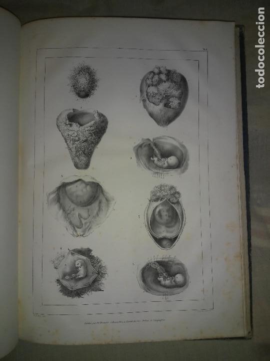 Libros antiguos: EMBRIOLOGIA O OVOLOGIA HUMANA - AÑO 1834 - VELPEAU - BELLAS PLANCHAS EN FOLIO. - Foto 7 - 229213030