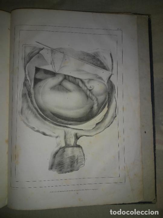 Libros antiguos: EMBRIOLOGIA O OVOLOGIA HUMANA - AÑO 1834 - VELPEAU - BELLAS PLANCHAS EN FOLIO. - Foto 8 - 229213030