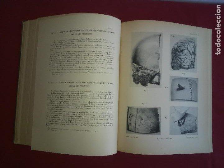Libros antiguos: CIRUGIA PLASTICA DE HERIDOS EN LA PRIMERA GUERRA MUNDIAL - AÑO 1918 - O.JACOB - IMPRESIONANTES IMAGE - Foto 5 - 235242220