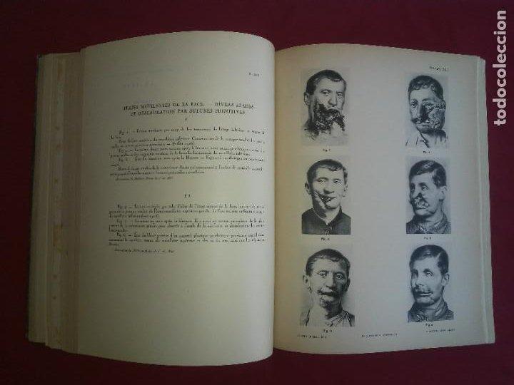 Libros antiguos: CIRUGIA PLASTICA DE HERIDOS EN LA PRIMERA GUERRA MUNDIAL - AÑO 1918 - O.JACOB - IMPRESIONANTES IMAGE - Foto 6 - 235242220