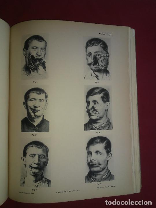 Libros antiguos: CIRUGIA PLASTICA DE HERIDOS EN LA PRIMERA GUERRA MUNDIAL - AÑO 1918 - O.JACOB - IMPRESIONANTES IMAGE - Foto 7 - 235242220