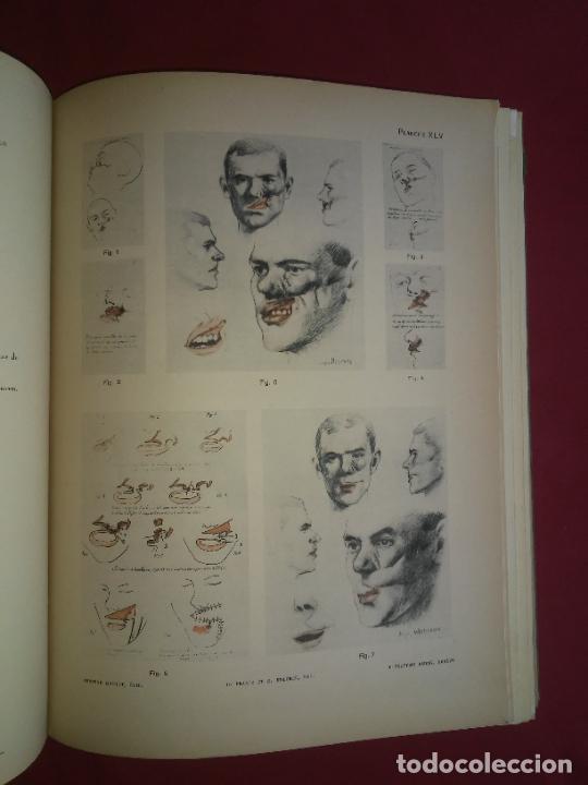 Libros antiguos: CIRUGIA PLASTICA DE HERIDOS EN LA PRIMERA GUERRA MUNDIAL - AÑO 1918 - O.JACOB - IMPRESIONANTES IMAGE - Foto 8 - 235242220