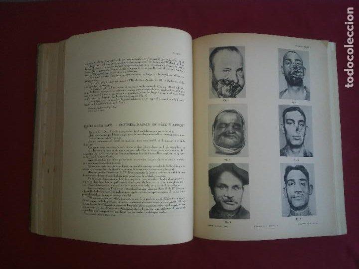 Libros antiguos: CIRUGIA PLASTICA DE HERIDOS EN LA PRIMERA GUERRA MUNDIAL - AÑO 1918 - O.JACOB - IMPRESIONANTES IMAGE - Foto 9 - 235242220