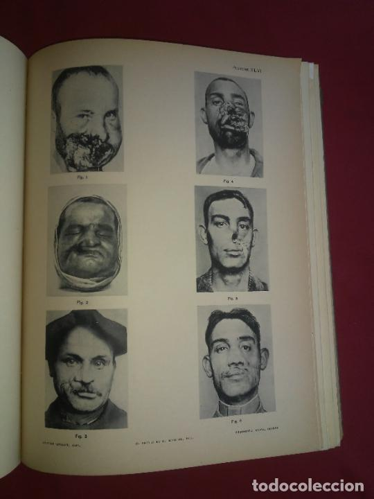 Libros antiguos: CIRUGIA PLASTICA DE HERIDOS EN LA PRIMERA GUERRA MUNDIAL - AÑO 1918 - O.JACOB - IMPRESIONANTES IMAGE - Foto 10 - 235242220