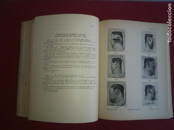 Libros antiguos: CIRUGIA PLASTICA DE HERIDOS EN LA PRIMERA GUERRA MUNDIAL - AÑO 1918 - O.JACOB - IMPRESIONANTES IMAGE - Foto 11 - 235242220