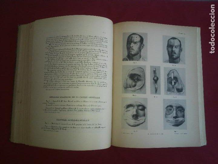 Libros antiguos: CIRUGIA PLASTICA DE HERIDOS EN LA PRIMERA GUERRA MUNDIAL - AÑO 1918 - O.JACOB - IMPRESIONANTES IMAGE - Foto 12 - 235242220