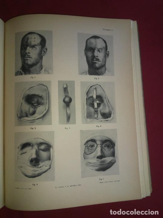 Libros antiguos: CIRUGIA PLASTICA DE HERIDOS EN LA PRIMERA GUERRA MUNDIAL - AÑO 1918 - O.JACOB - IMPRESIONANTES IMAGE - Foto 13 - 235242220