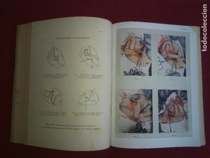Libros antiguos: CIRUGIA PLASTICA DE HERIDOS EN LA PRIMERA GUERRA MUNDIAL - AÑO 1918 - O.JACOB - IMPRESIONANTES IMAGE - Foto 14 - 235242220