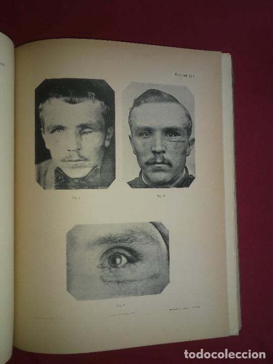 Libros antiguos: CIRUGIA PLASTICA DE HERIDOS EN LA PRIMERA GUERRA MUNDIAL - AÑO 1918 - O.JACOB - IMPRESIONANTES IMAGE - Foto 16 - 235242220