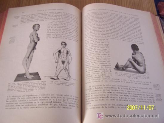 Libros antiguos: TRATADO DE CIRUGÍA GENERAL Y ESPECIAL, COMPRENDIENDO LAS NUEVAS OPERACIONES Y TÉCNICAS DE CURACIÓN. - Foto 5 - 14802398
